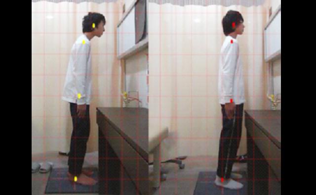 身体が歪んでいる写真と正常な写真の比較